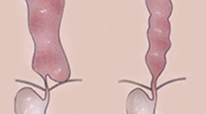 Ахалазия кардии пищевода