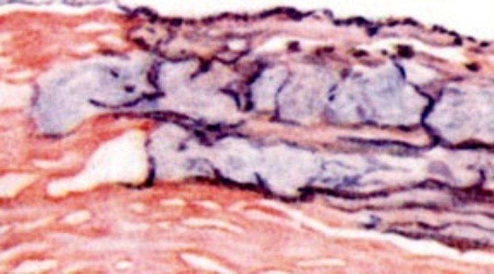 Анаэробная инфекция