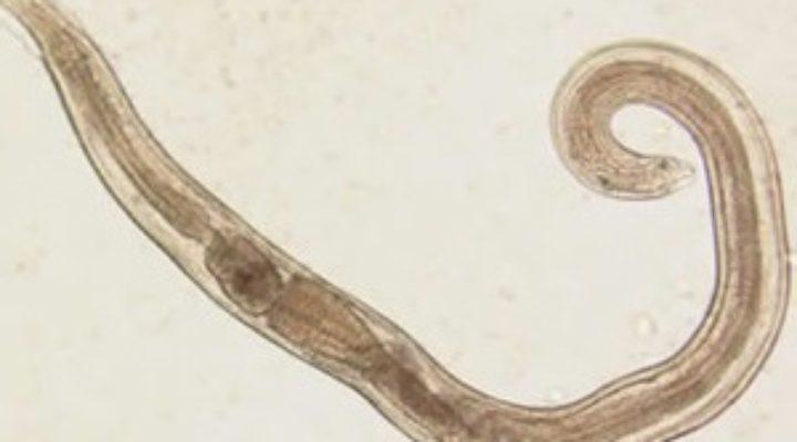 Анкилостомидоз у человека