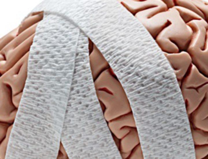 Арахноидит головного мозга