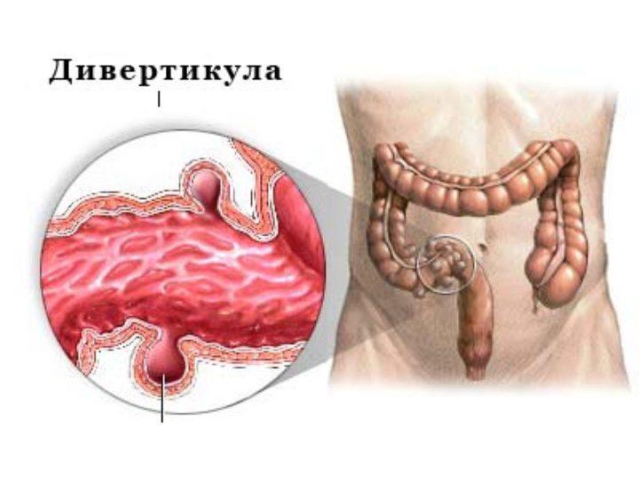 Дивертикулит сигмовидной кишки