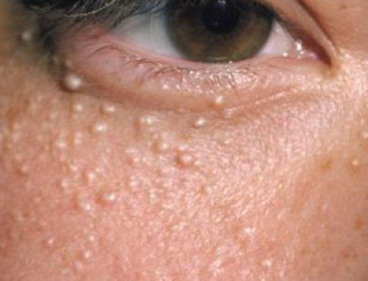 Милиумы на лице