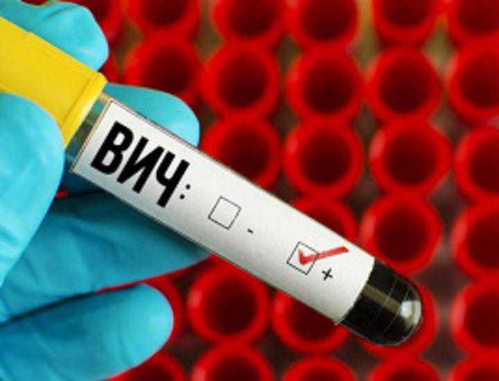 Первые признаки ВИЧ