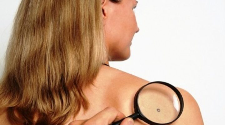 Вирус папилломы человека у женщин