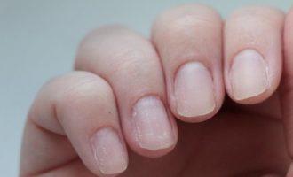 Что делать, если слоятся ногти на руках?