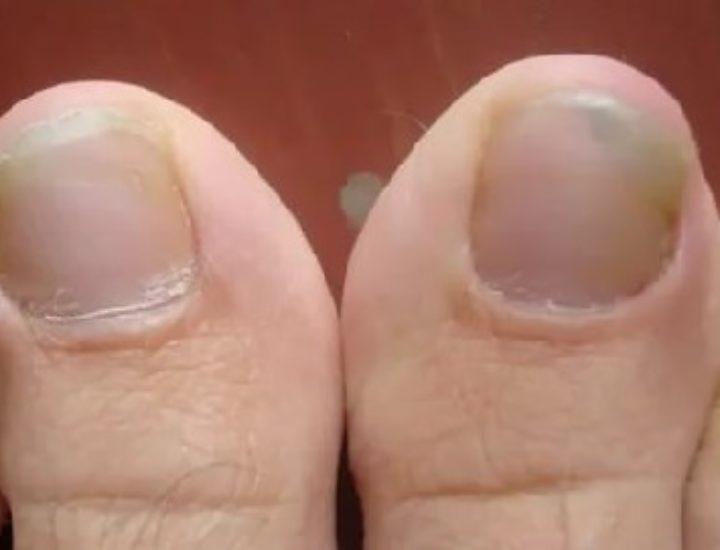 Рецепты с уксусом для лечения грибка ногтей